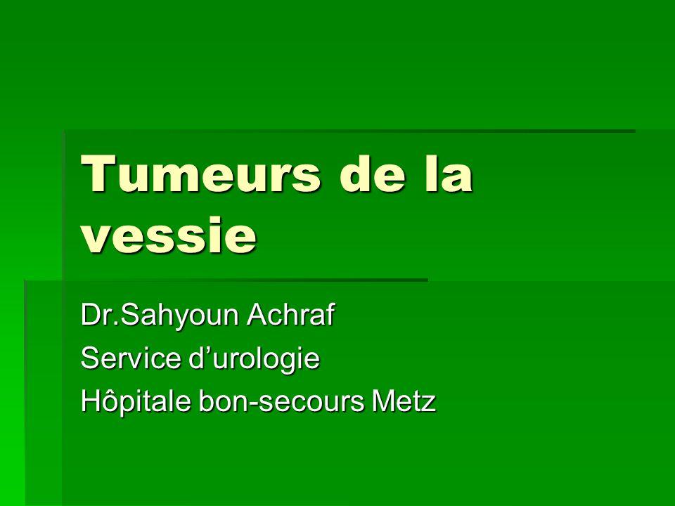 Tumeurs de la vessie Dr.Sahyoun Achraf Service d'urologie Hôpitale bon-secours Metz