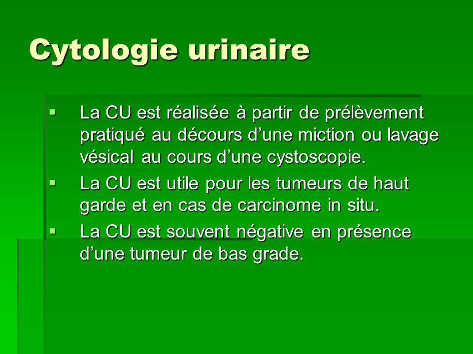 Cytologie urinaire  La CU est réalisée à partir de prélèvement pratiqué au décours d'une miction ou lavage vésical au cours d'une cystoscopie.  La C