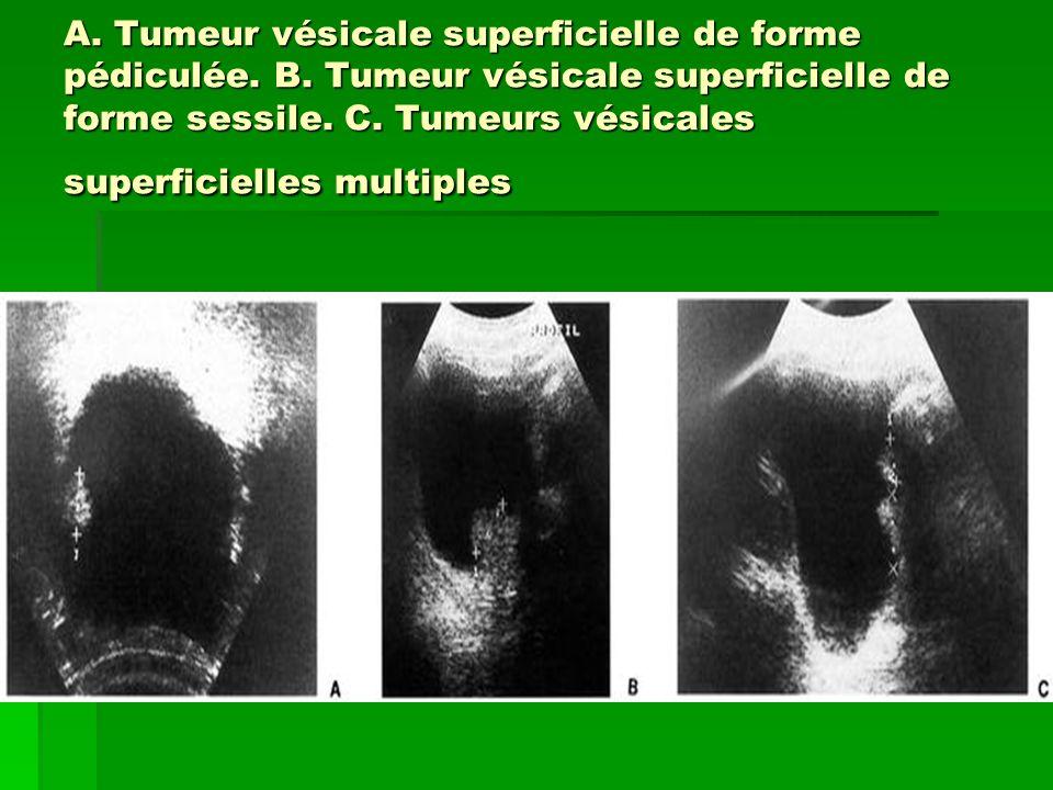 A. Tumeur vésicale superficielle de forme pédiculée. B. Tumeur vésicale superficielle de forme sessile. C. Tumeurs vésicales superficielles multiples