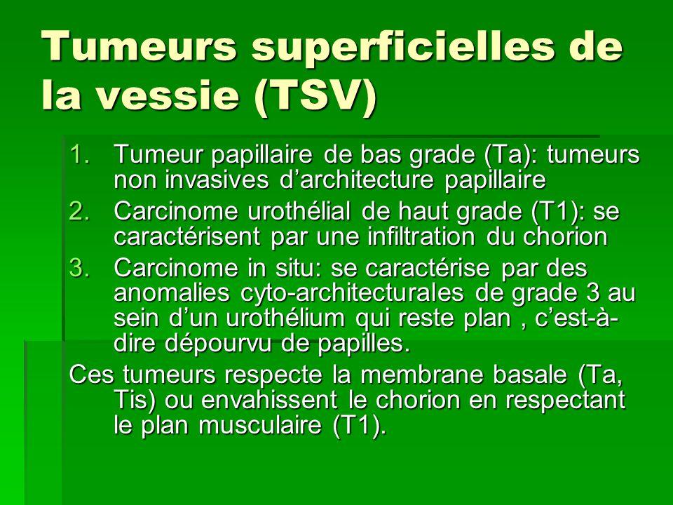 Tumeurs superficielles de la vessie (TSV) 1.Tumeur papillaire de bas grade (Ta): tumeurs non invasives d'architecture papillaire 2.Carcinome urothélia