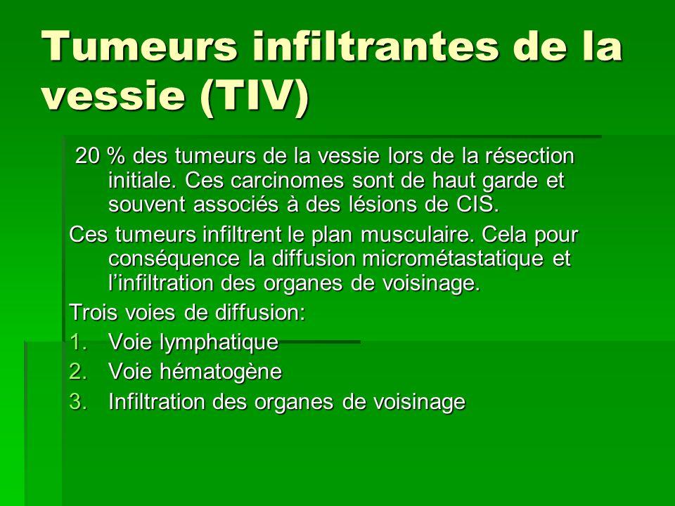 Tumeurs infiltrantes de la vessie (TIV) 20 % des tumeurs de la vessie lors de la résection initiale. Ces carcinomes sont de haut garde et souvent asso