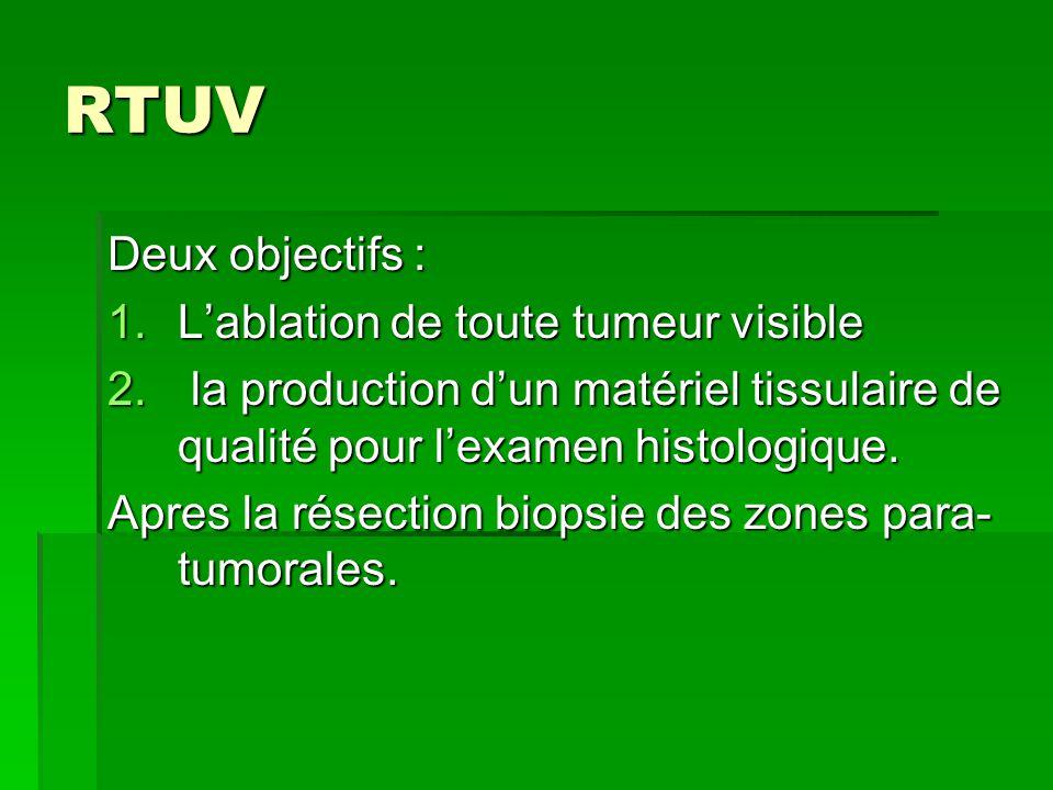 RTUV Deux objectifs : 1.L'ablation de toute tumeur visible 2. la production d'un matériel tissulaire de qualité pour l'examen histologique. Apres la r