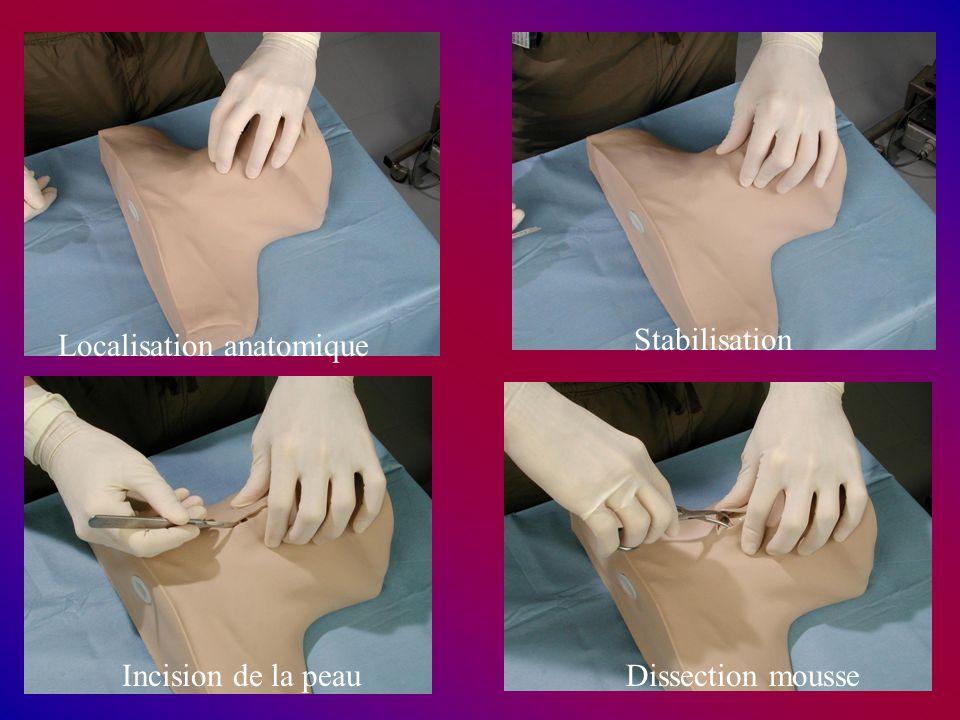 Localisation anatomique Stabilisation Incision de la peauDissection mousse