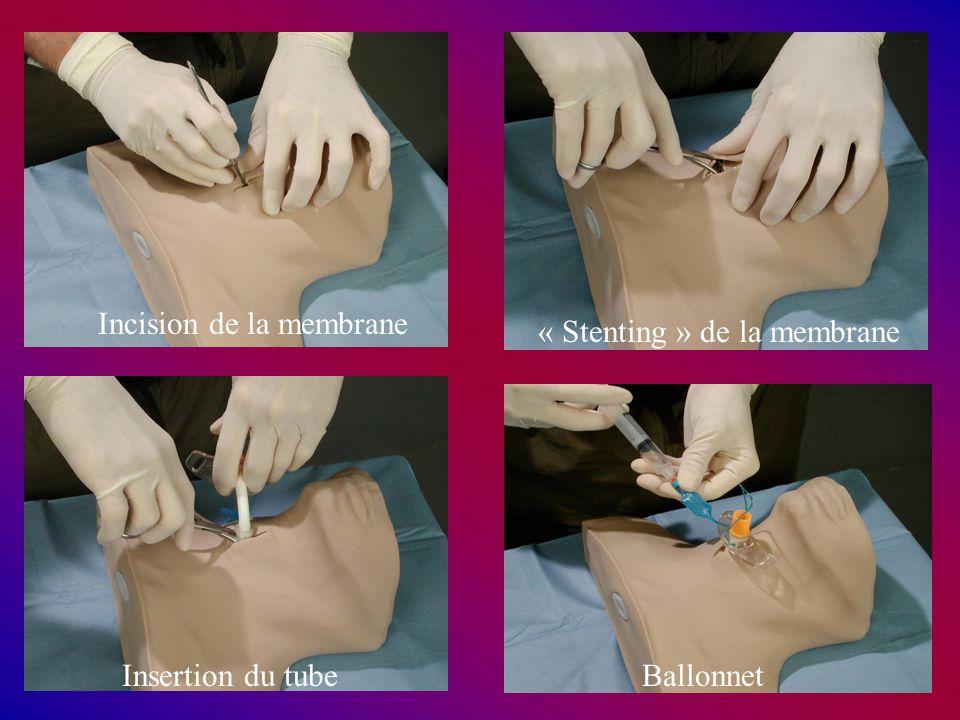 Incision de la membrane « Stenting » de la membrane Insertion du tubeBallonnet