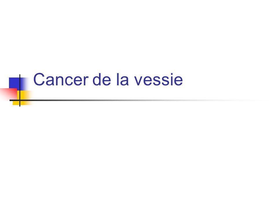 Cystoscopie lésion volumineuse envahissant méat Dt UIV et Uroscanner: volumineuse récidive tumorale face latérale droite avec ureterohydronéphrose Dt