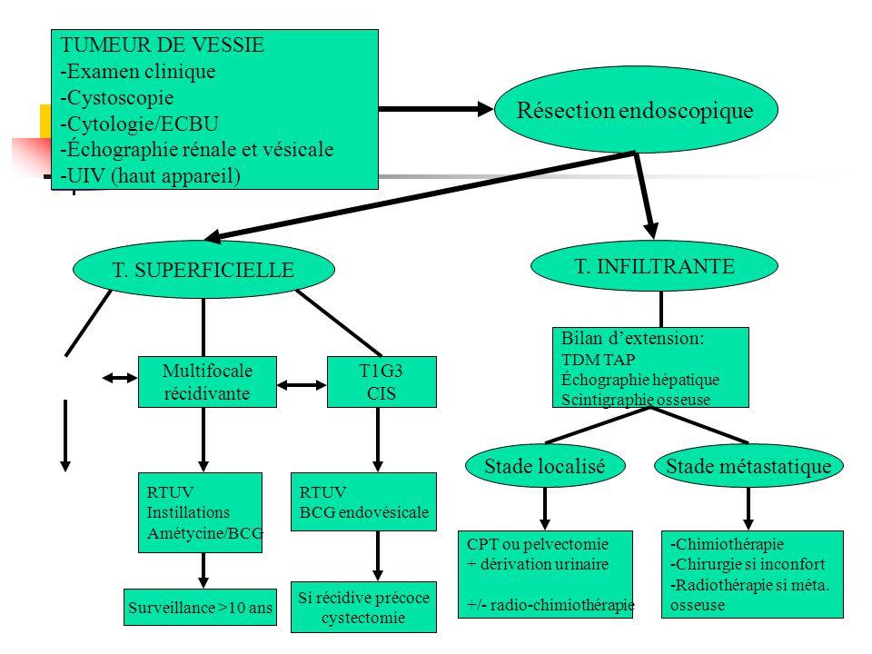 TUMEUR DE VESSIE -Examen clinique -Cystoscopie -Cytologie/ECBU -Échographie rénale et vésicale -UIV (haut appareil) Résection endoscopique T. SUPERFIC