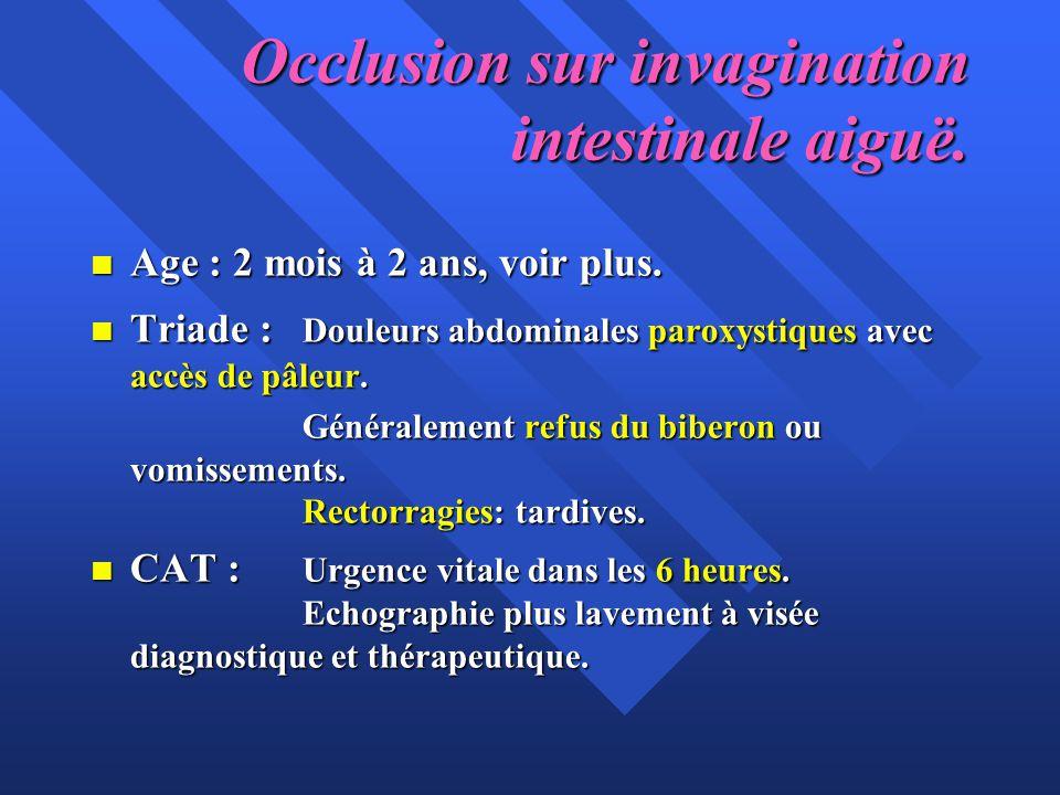 Occlusion sur invagination intestinale aiguë. n Age : 2 mois à 2 ans, voir plus. n Triade : Douleurs abdominales paroxystiques avec accès de pâleur. G
