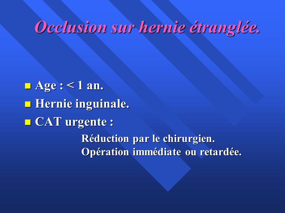Occlusion sur hernie étranglée. n Age : < 1 an. n Hernie inguinale. n CAT urgente : Réduction par le chirurgien. Opération immédiate ou retardée.