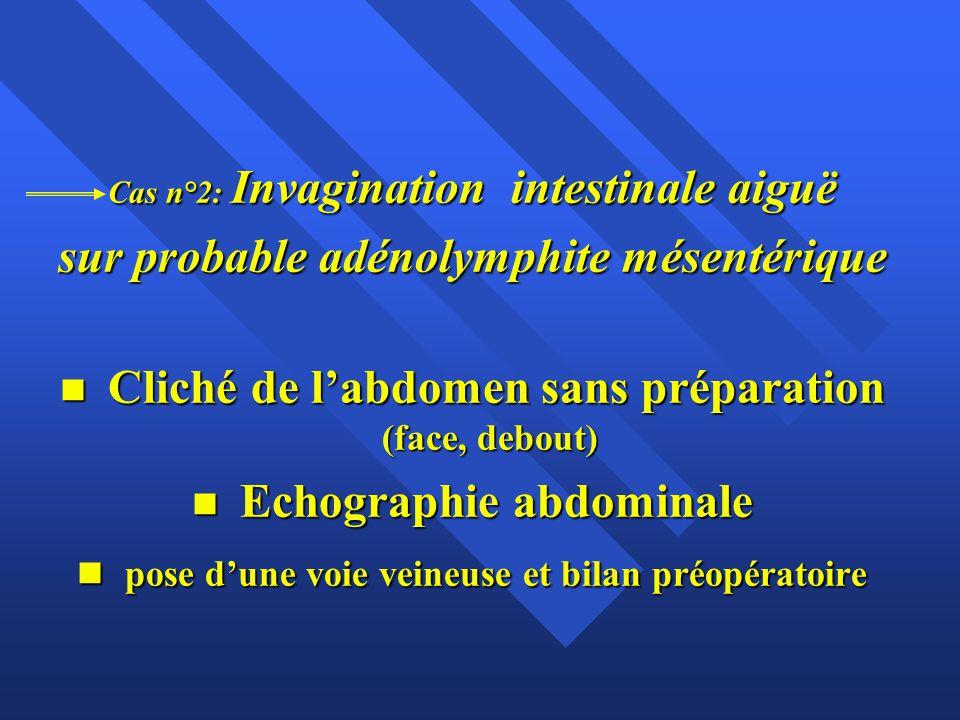 Cas n°2: Invagination intestinale aiguë sur probable adénolymphite mésentérique n Cliché de l'abdomen sans préparation (face, debout) n Echographie ab