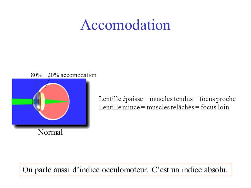 Accomodation 80%20% accomodation Normal Lentille épaisse = muscles tendus = focus proche Lentille mince = muscles relâchés = focus loin On parle aussi