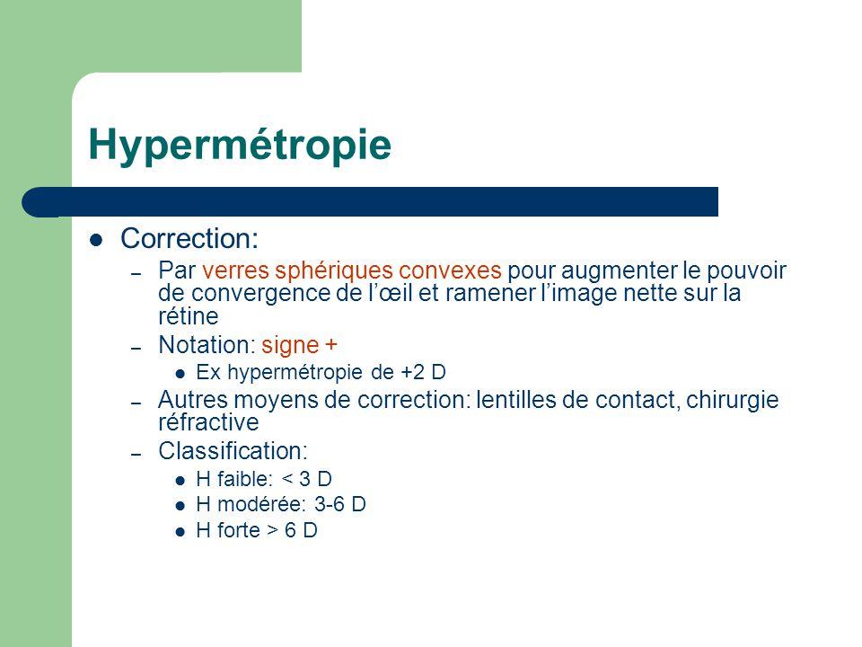 Hypermétropie Correction: – Par verres sphériques convexes pour augmenter le pouvoir de convergence de l'œil et ramener l'image nette sur la rétine –