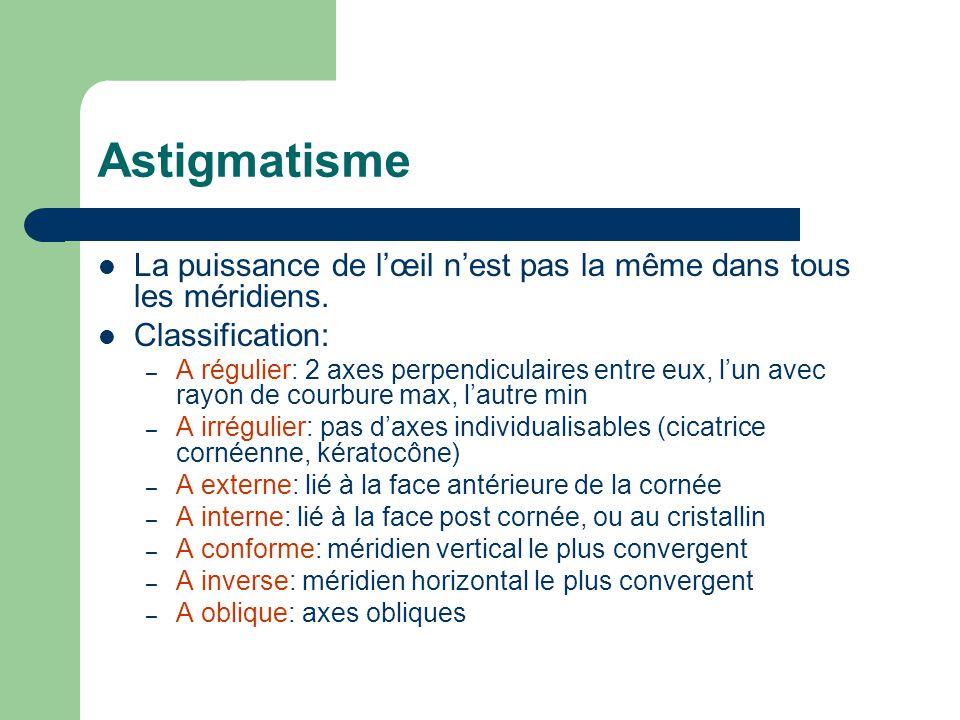 Astigmatisme La puissance de l'œil n'est pas la même dans tous les méridiens. Classification: – A régulier: 2 axes perpendiculaires entre eux, l'un av