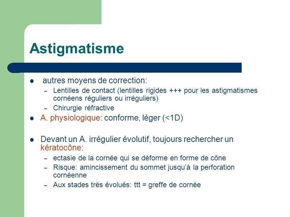 Astigmatisme autres moyens de correction: – Lentilles de contact (lentilles rigides +++ pour les astigmatismes cornéens réguliers ou irréguliers) – Ch