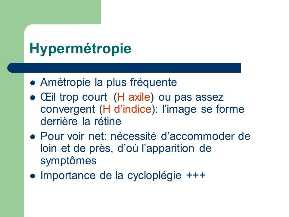 Hypermétropie Amétropie la plus fréquente Œil trop court (H axile) ou pas assez convergent (H d'indice): l'image se forme derrière la rétine Pour voir