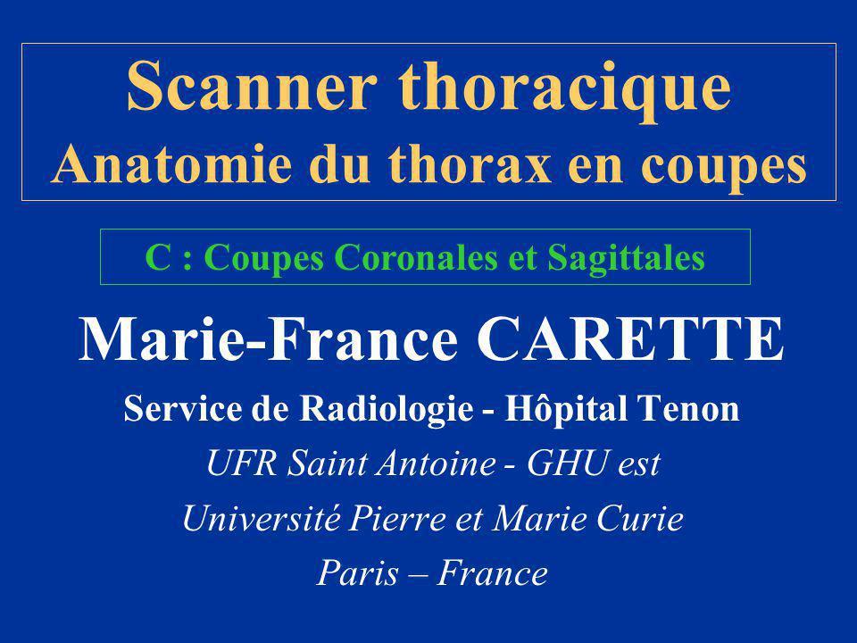 Coupes Coronales et Sagittales IRM : directement TDM : reconstructions