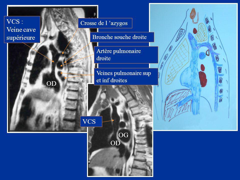 OD OG VCS : Veine cave supérieure VCS Crosse de l 'azygos Bronche souche droite Artère pulmonaire droite Veines pulmonaire sup et inf droites