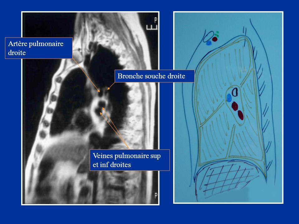 Bronche souche droite Artère pulmonaire droite Veines pulmonaire sup et inf droites