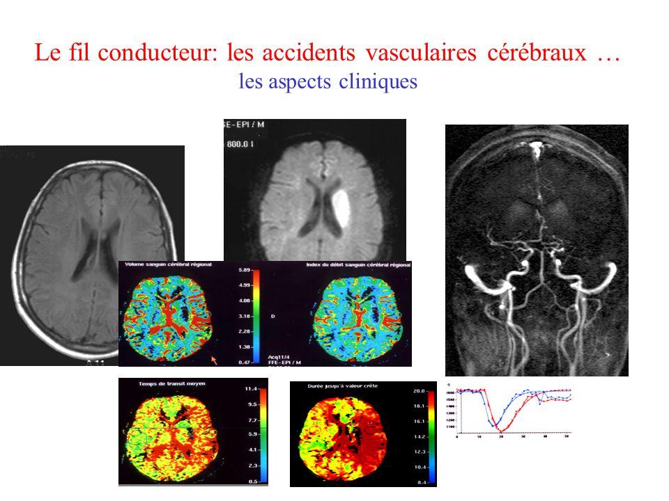Accidents vasculaires cérébraux … ces échecs thérapeutiques étaient ils prévisibles .