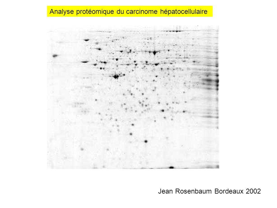 Analyse protéomique du carcinome hépatocellulaire Jean Rosenbaum Bordeaux 2002
