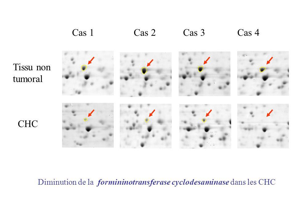 Cas 1 Cas 2 Cas 3 Cas 4 Tissu non tumoral CHC Diminution de la formininotransferase cyclodesaminase dans les CHC