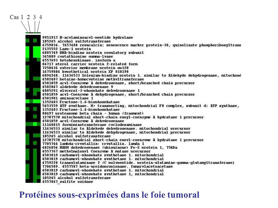 Cas 1 2 3 4 Protéines sous-exprimées dans le foie tumoral