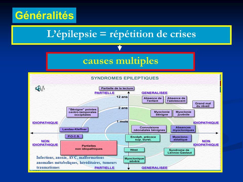 L'épilepsie = répétition de crises Généralités causes multiples Infections, anoxie, AVC, malformations anomalies métaboliques, héréditaires, tumeurs traumatismes