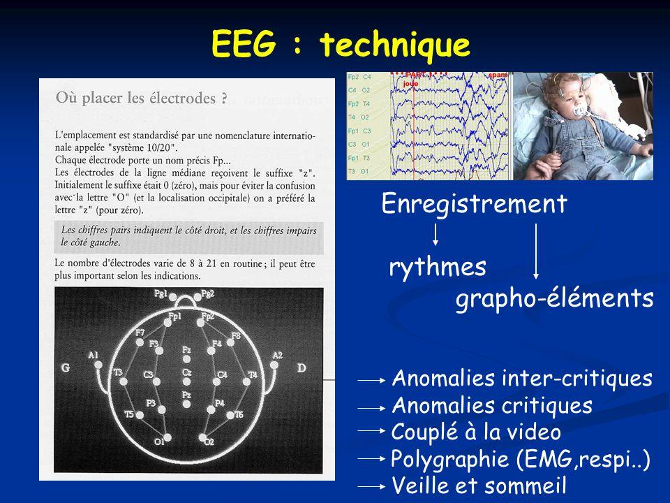 EEG : technique Enregistrement rythmes grapho-éléments Anomalies inter-critiques Anomalies critiques Couplé à la video Polygraphie (EMG,respi..) Veille et sommeil