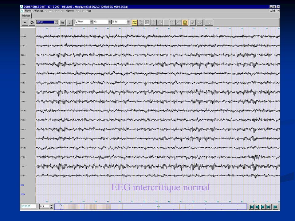 EEG intercritique normal
