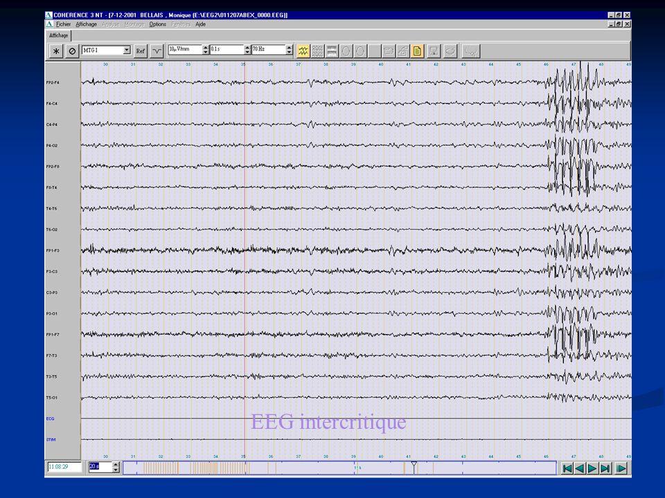 EEG intercritique
