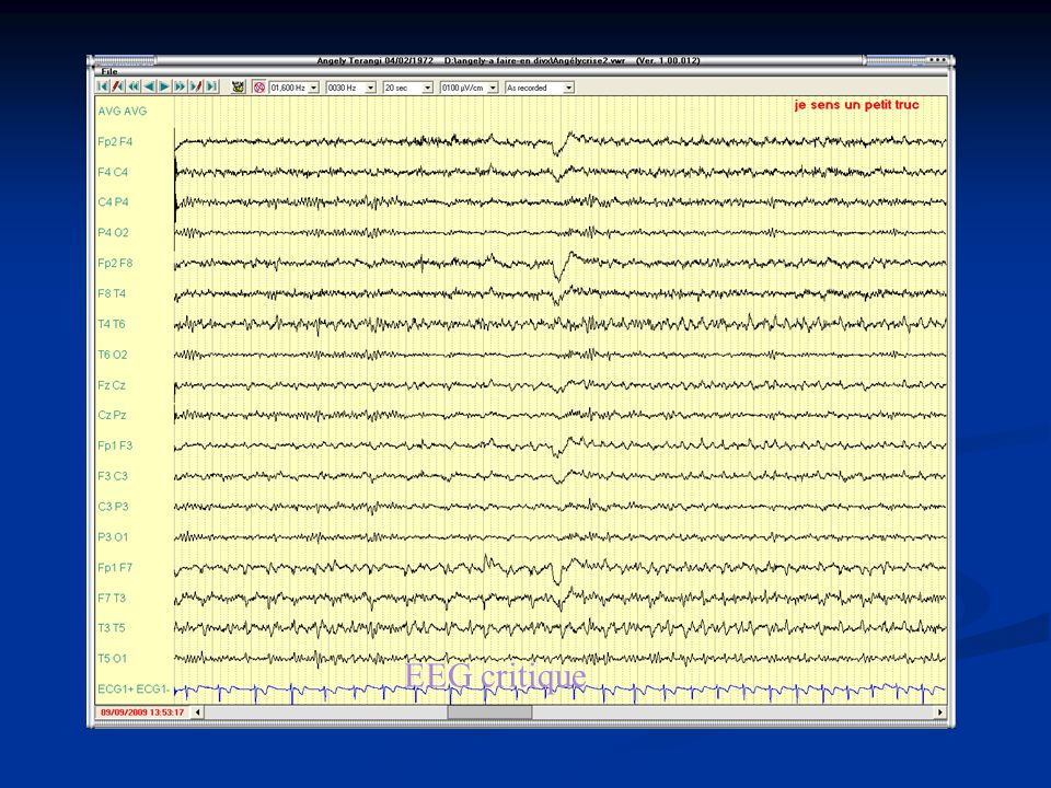 EEG critique