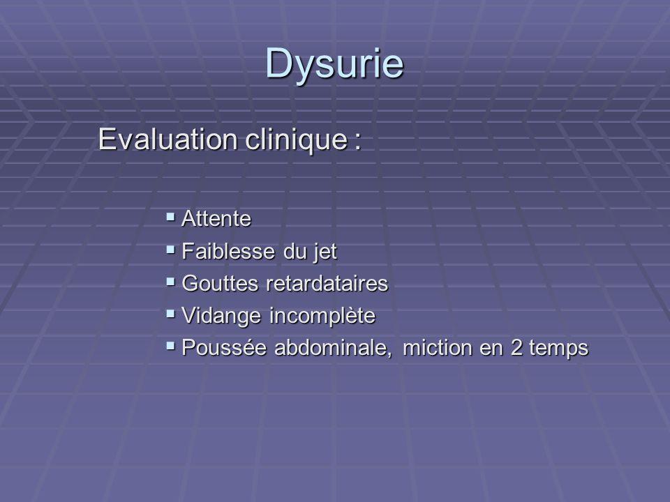 Dysurie Evaluation clinique :  Attente  Faiblesse du jet  Gouttes retardataires  Vidange incomplète  Poussée abdominale, miction en 2 temps