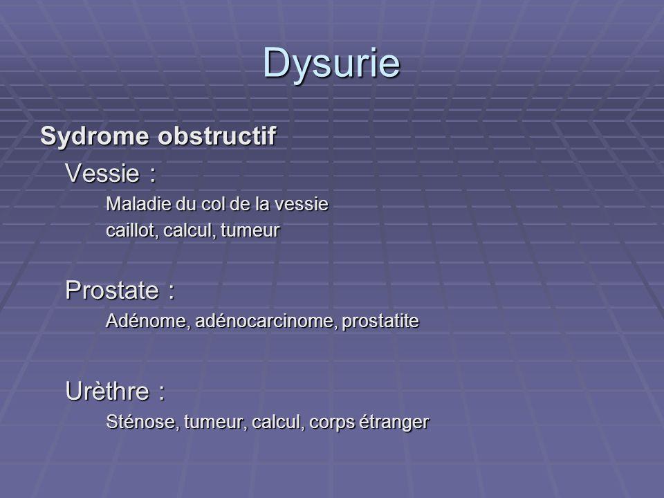 Dysurie Sydrome obstructif Vessie : Maladie du col de la vessie caillot, calcul, tumeur Prostate : Adénome, adénocarcinome, prostatite Urèthre : Sténo