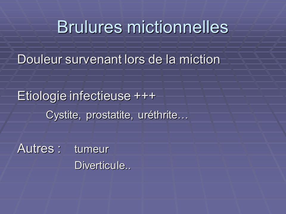 Brulures mictionnelles Douleur survenant lors de la miction Etiologie infectieuse +++ Cystite, prostatite, uréthrite… Autres : tumeur Diverticule..