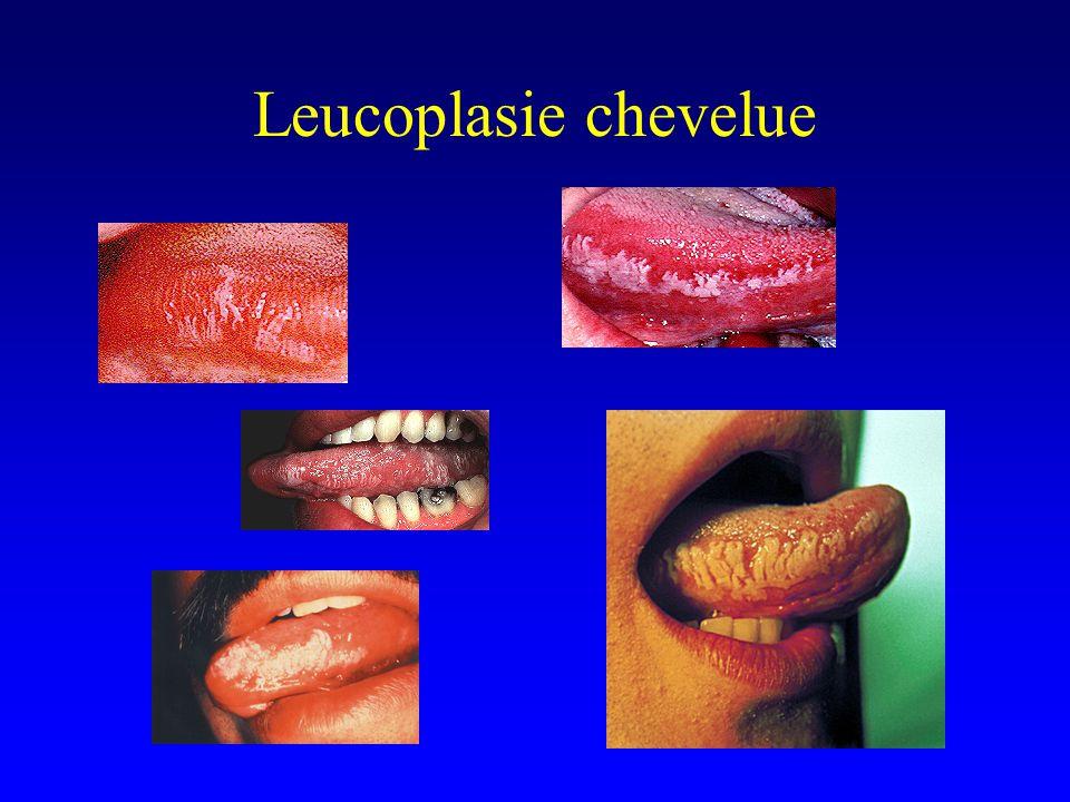 Leucoplasie chevelue