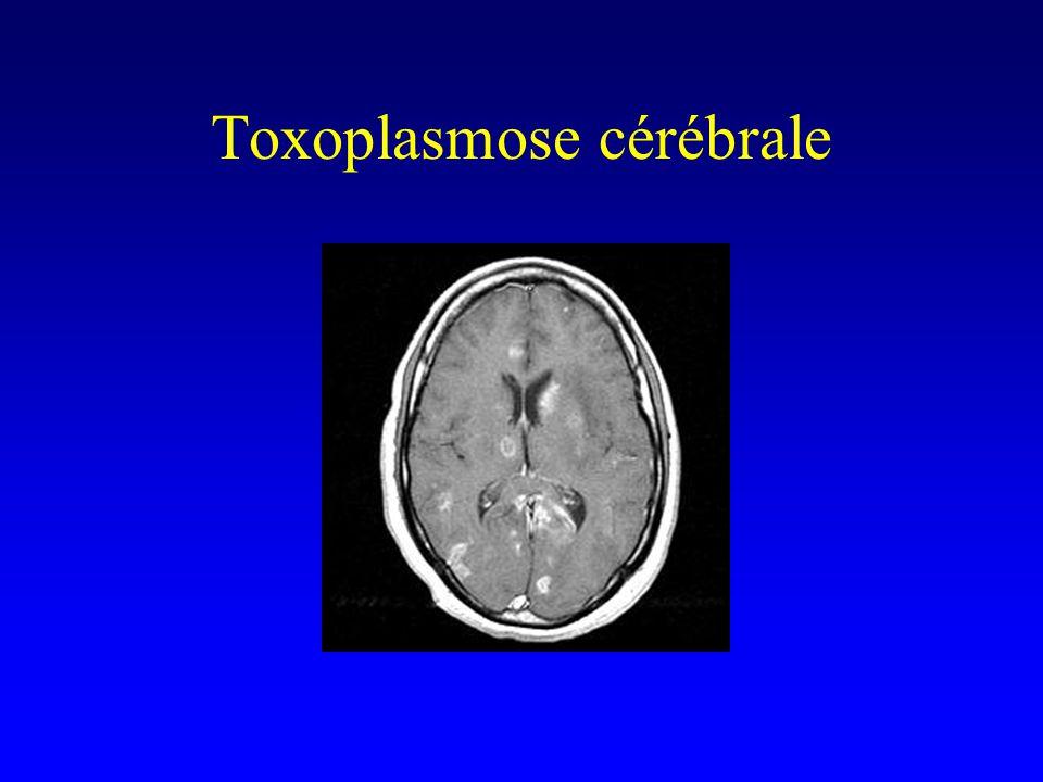 Toxoplasmose cérébrale