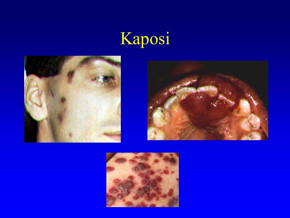 Kaposi