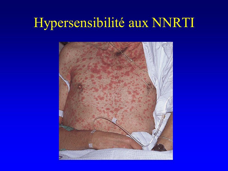 Hypersensibilité aux NNRTI