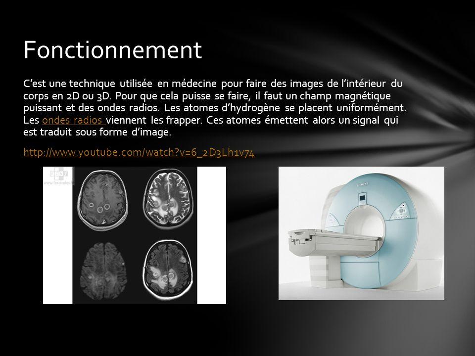 C'est une technique utilisée en médecine pour faire des images de l'intérieur du corps en 2D ou 3D.