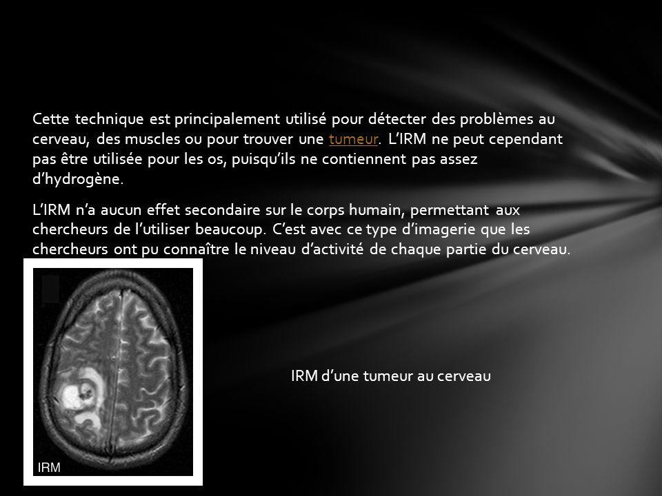 Cette technique est principalement utilisé pour détecter des problèmes au cerveau, des muscles ou pour trouver une tumeur.