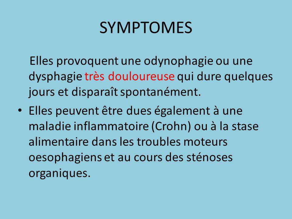 SYMPTOMES Elles provoquent une odynophagie ou une dysphagie très douloureuse qui dure quelques jours et disparaît spontanément. Elles peuvent être due