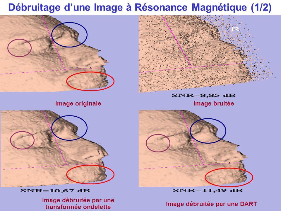 Débruitage d'une Image à Résonance Magnétique (1/2) Image débruitée par une DART Image originaleImage bruitée Image débruitée par une transformée onde