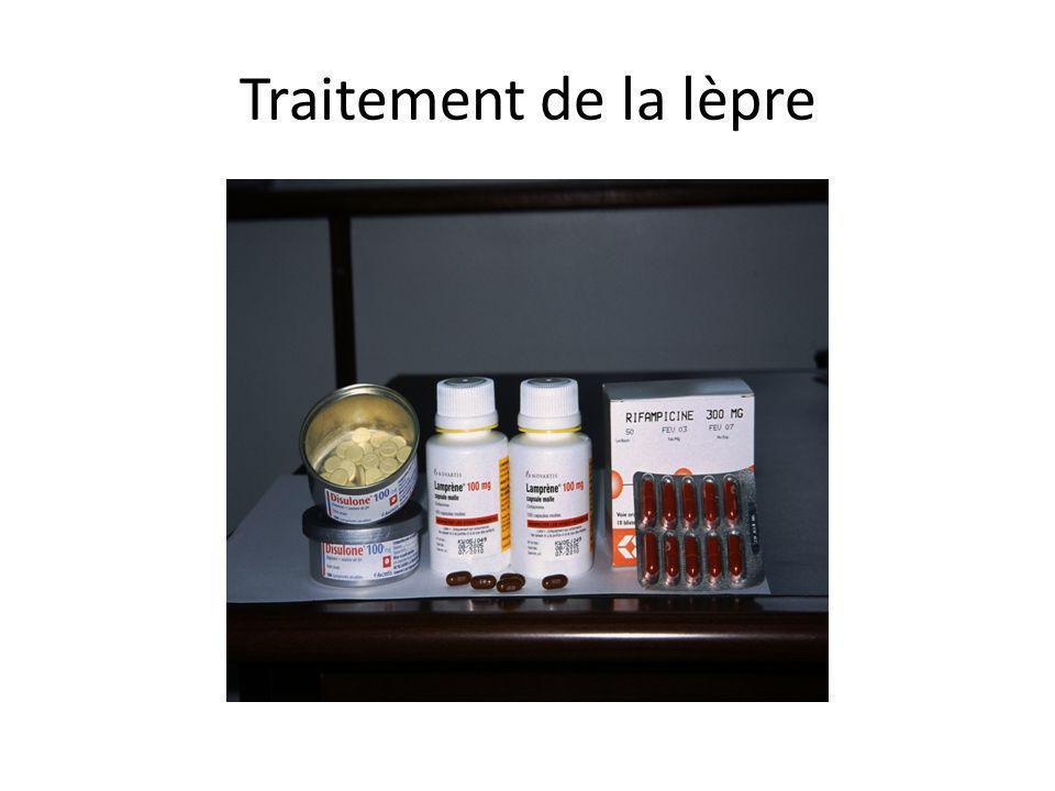 Traitement de la lèpre
