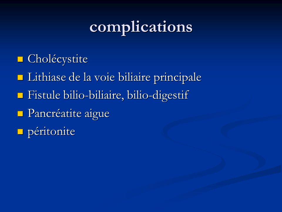 complications Cholécystite Cholécystite Lithiase de la voie biliaire principale Lithiase de la voie biliaire principale Fistule bilio-biliaire, bilio-
