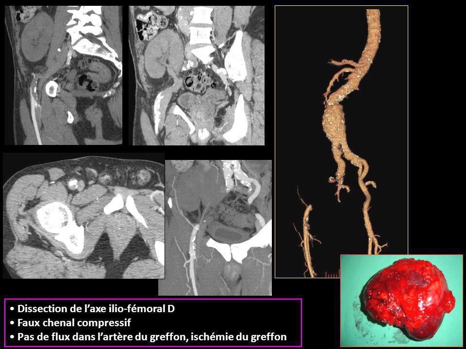 Dissection de l'axe ilio-fémoral D Faux chenal compressif Pas de flux dans l'artère du greffon, ischémie du greffon
