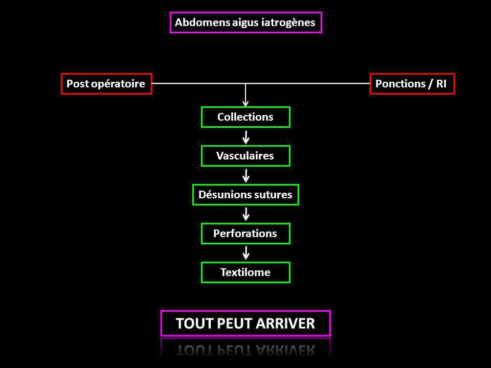 Abdomens aigus iatrogènes Collections Points clefs : - Adapter les protocoles +++ - Séries non injectées : hématomes - Séries tardives voire ultra-tardives +++ - Opacifier si orifice de fistule +++  Hématome  Abcès  Urinomes  Biliomes