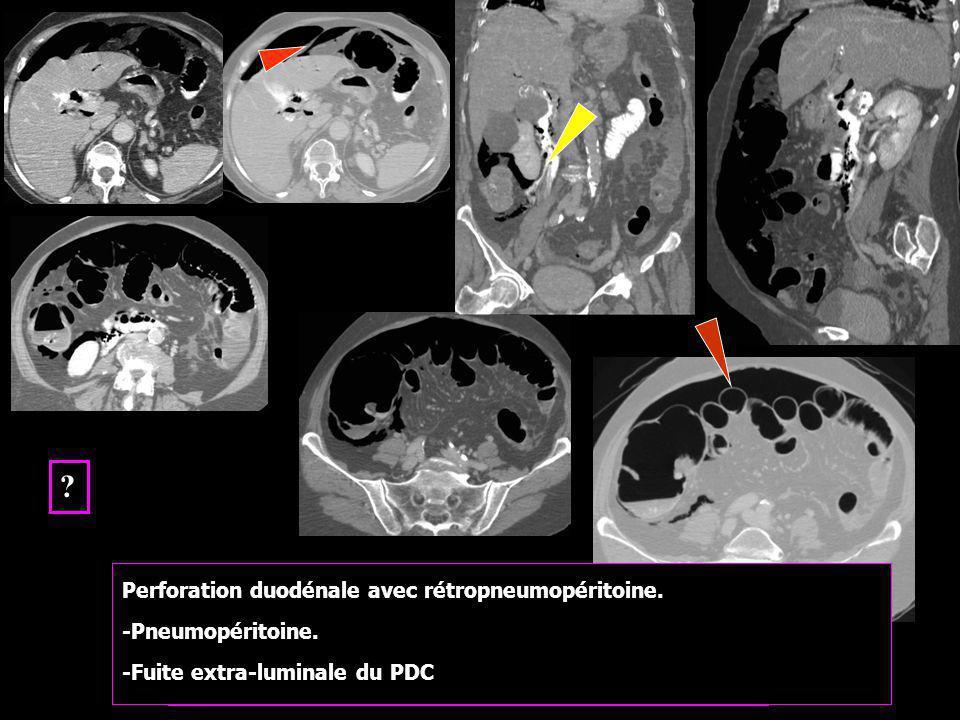 Sphinctérotomie endoscopique difficile Perforation duodénale avec rétropneumopéritoine. -Pneumopéritoine. -Fuite extra-luminale du PDC ?