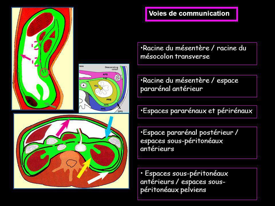 Voies de communication Racine du mésentère / racine du mésocolon transverse Racine du mésentère / espace pararénal antérieur Espaces pararénaux et pér