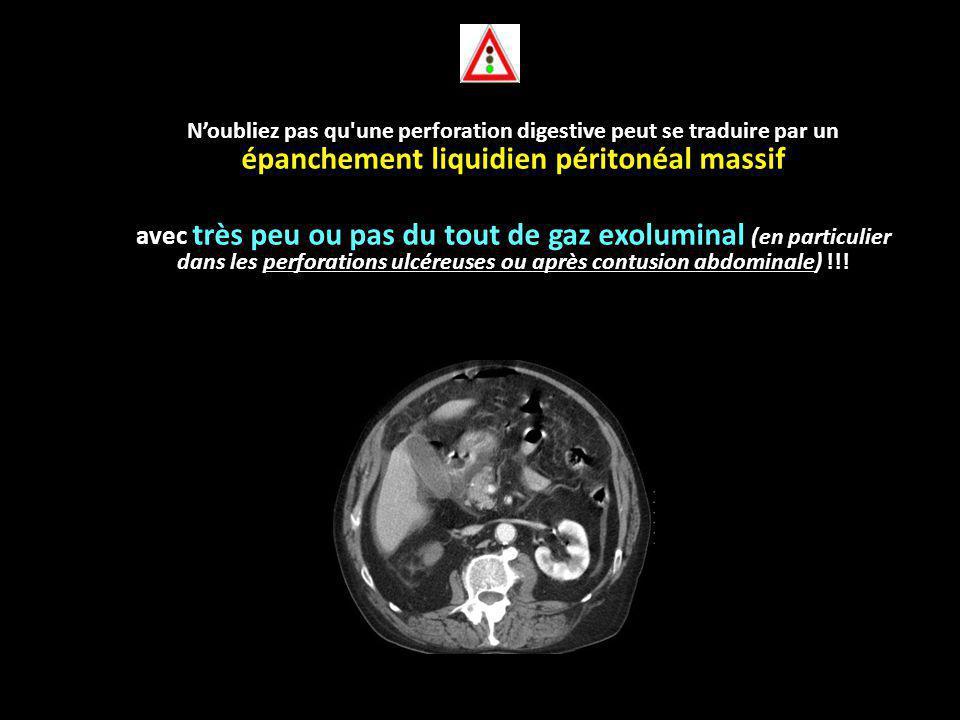 N'oubliez pas qu une perforation digestive peut se traduire par un épanchement liquidien péritonéal massif avec très peu ou pas du tout de gaz exoluminal (en particulier dans les perforations ulcéreuses ou après contusion abdominale) !!!