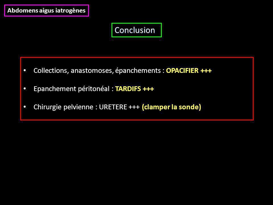 Collections, anastomoses, épanchements : OPACIFIER +++ Epanchement péritonéal : TARDIFS +++ Chirurgie pelvienne : URETERE +++ (clamper la sonde) Concl