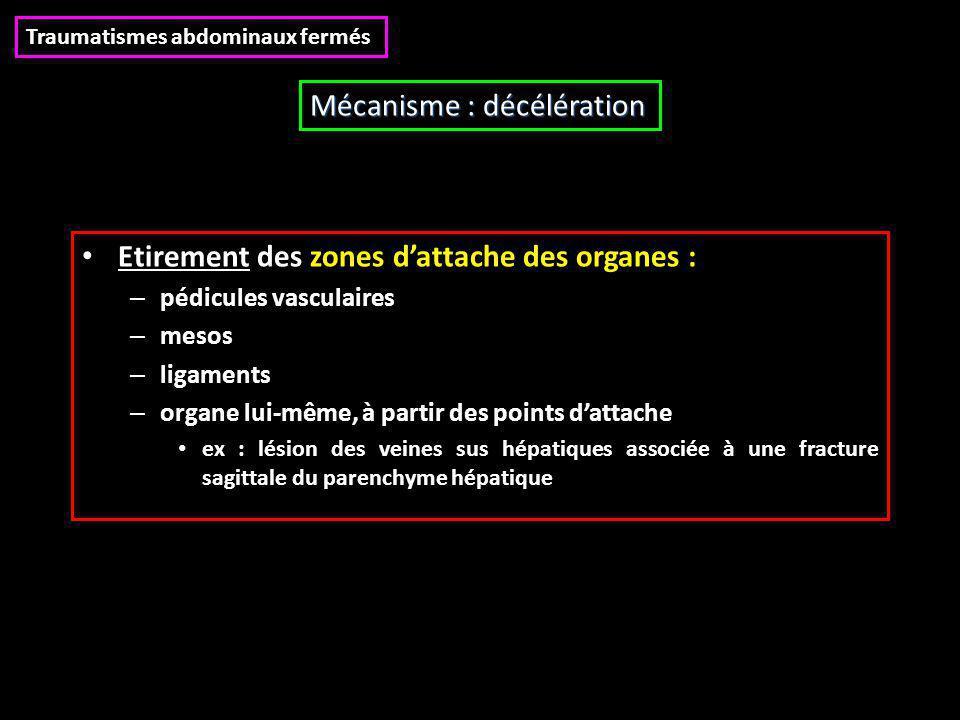 Etirement des zones d'attache des organes : – pédicules vasculaires – mesos – ligaments – organe lui-même, à partir des points d'attache ex : lésion des veines sus hépatiques associée à une fracture sagittale du parenchyme hépatique Traumatismes abdominaux fermés Mécanisme : décélération